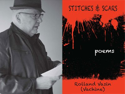 Sitches & Scars by Rolland Vasin